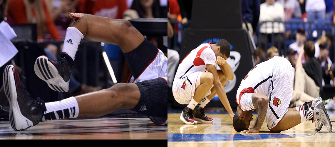 Worst basketball injuries kevin ware